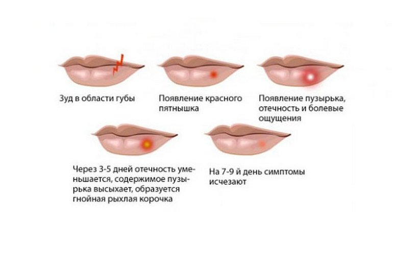 Симптомы герпеса на губах, основные признаки